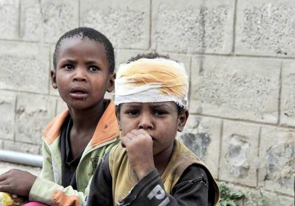 Most Inspiring Yemen eid al-fitr feast - 13940425135252744_photol  Gallery_59730 .jpg?w\u003d774